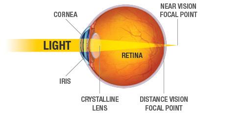 Presbyopia_Diagram