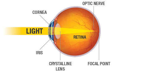LASIK_Diagram