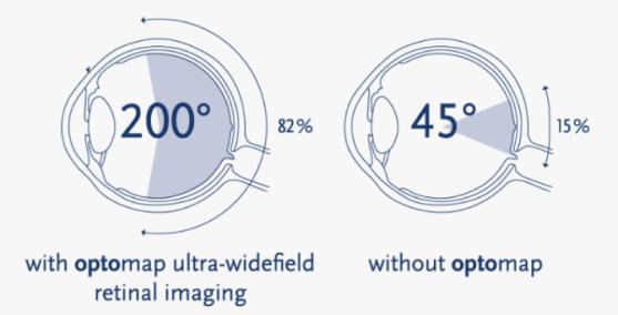 Ultra-widefield-retinal-imaging 1