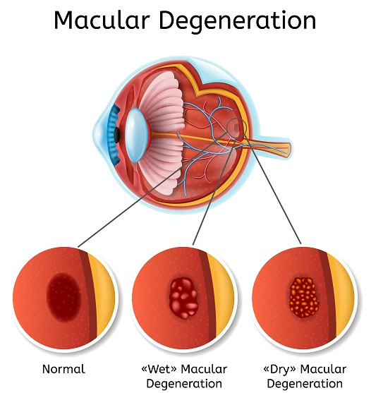 age-related-macular-degeneration-treatment
