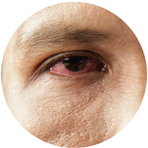 laser-treatment-for-glaucoma